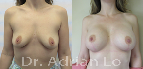 Nipple Sensation after a breast surgery